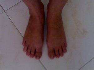 Лечение вальгусной деформации стоп новая жизнь ваших ног